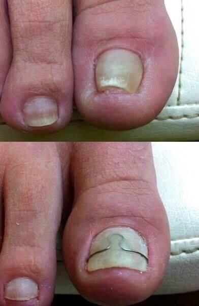 Вросший палец на ноге лечение в домашних  275