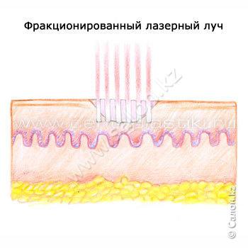 -белки теплового шока: